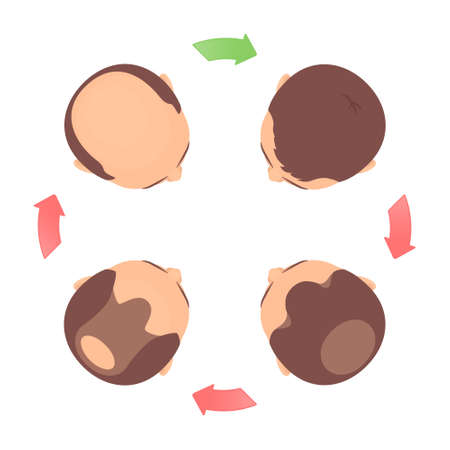 Male-pattern hair loss 4 stages set with head in top view. Classification of baldness in men in round chart with circular arrows. Androgenetic alopecia medical infographic. Vector illustration. Иллюстрация