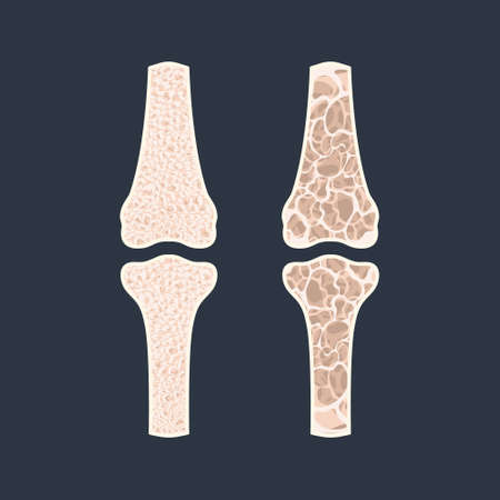 Bone density loss disease infographic banner. Normal bone vs osteoporotic bone. Health care and medical concept. Vector illustration.