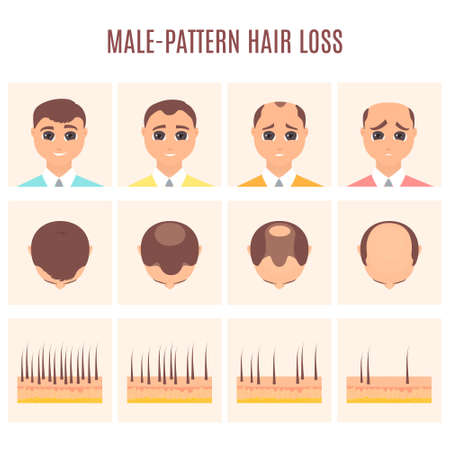 Male pattern hair loss set. Stages of baldness in men. Treatment result in front and top view. Number of follicles on scalp in each step. Alopecia infographic medical vector illustration.