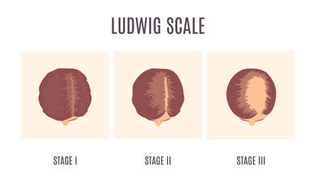 Female-pattern hair loss by Ludwig scale. 3 stages of baldness in women. Classification of alopecia shown on a head in top view. Beauty and health care concept. Medical vector illustration. Vector Illustration
