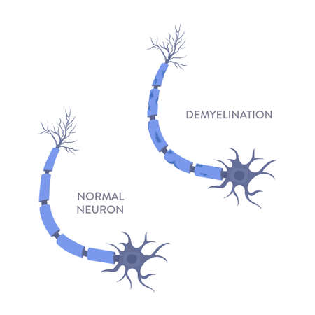 Healthy and damaged neuron diagram. Demyelination of neuron shealth under microscope. Loss of nerve cell myelin caused by multiple sclerosis. Neurological disease. Medical concept. Vector illustration Illustration