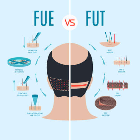 FUE vs FUT. Follicular unit extraction versus follicular unit transplantation. Types of hair transplant procedures and their stages. Male alopecia treatment. Medical infographics. Vector illustration.