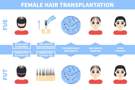 Male hair tranplantation with FUE, FUT methods