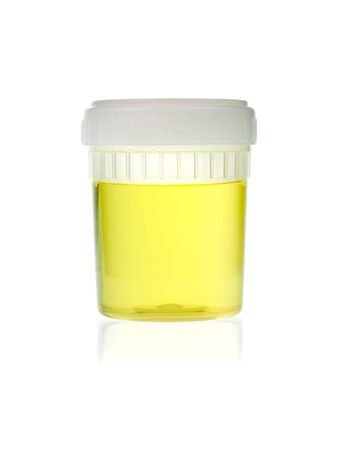 urinalysis: Urine sample in container on white background