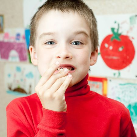 Boy shows lost deciduous teeth against his drawing on the wall photo