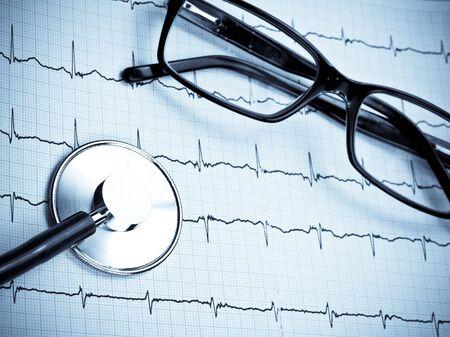 Stethoscope and glasses lying on ECG diagram blue toned Stock Photo - 5277299