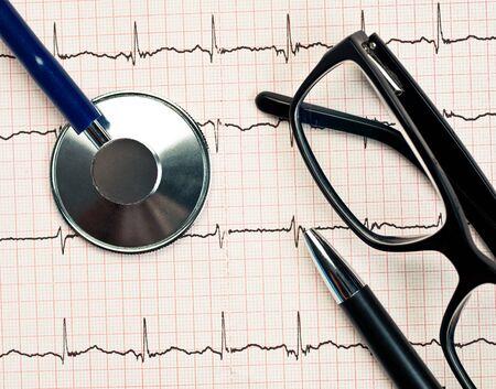 Stethoscope and glasses lying on ECG diagram Stock Photo - 9467608