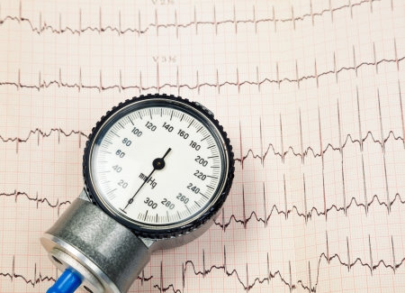 Aneroid sphygmomanometer lying on ECG diagram Stock Photo - 16878451
