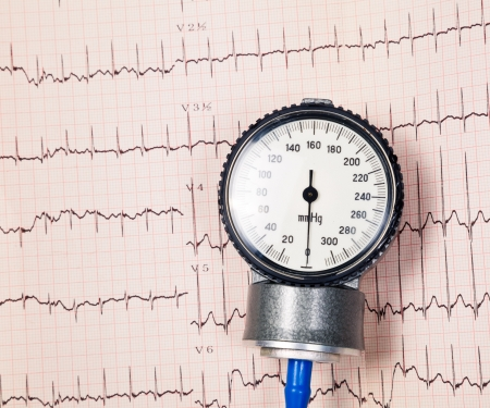 Aneroid sphygmomanometer lying on ECG diagram Stock Photo - 16915281