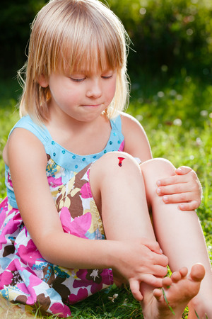 Little girl wearing summer dress sitting on a lawn in a garden with small injury on her knee. She is looking at aching place with pursed lips holding back the tears Standard-Bild - 118202203