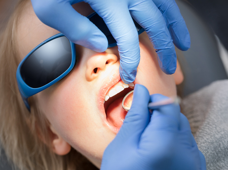 Dentist examining teeth of a little girl in pediatric dental clinic using angled mirror. Child sitting in a dental chair wearing sunglasses holding mouth open