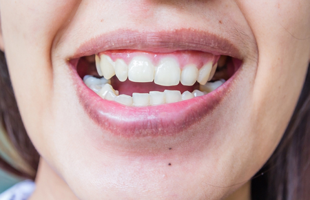 knocked out: ugly smile dental problem. Teeth Injuries or Teeth Falling in female. Trauma and Nerve Damage of injured tooth, Permanent Teeth Injury. Stock Photo