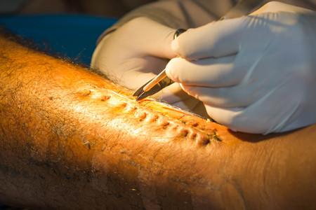 suture: stitch off suture wound.