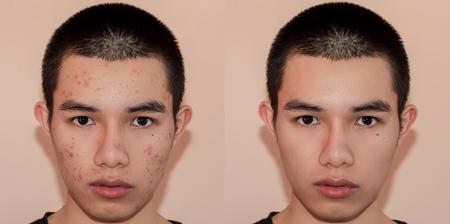 Jeune homme avec avant et après le traitement de l'acné et des boutons, avant et après le traitement de la peau du visage par les cicatrices et les rides par l'élimination de l'acné. Tache la peau par l'acné et la peau lisse par le traitement.