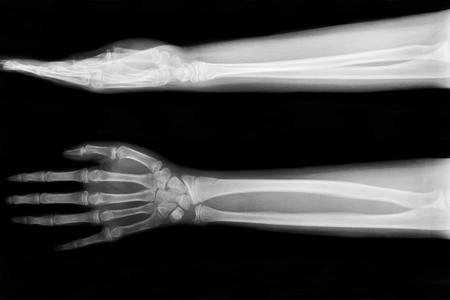 forearm: X-ray fracture ulnar bone (forearm bone)