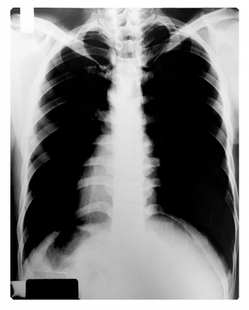 human spine: X-Ray Image Of Human Chest, Grayscale