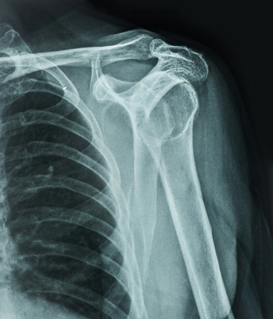 X-Ray Image Of Human photo