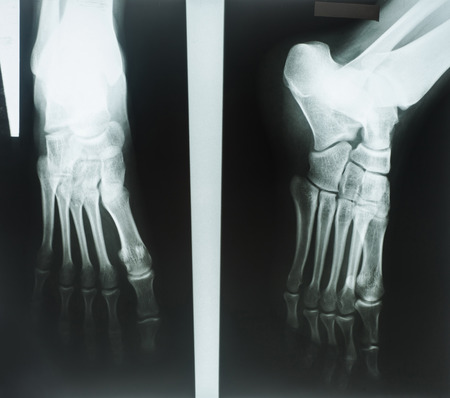 X-rays of human foot photo