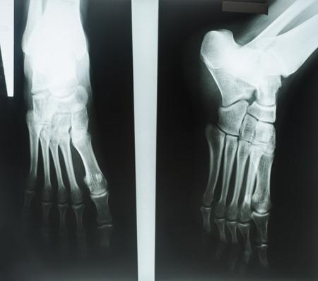 X-rays of human foot photo