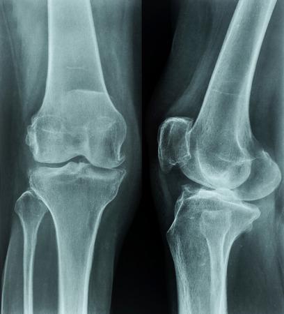 X-rays of leg photo