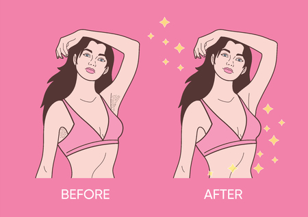 Illustration of underarm hair removal. Before and after concept design Illusztráció