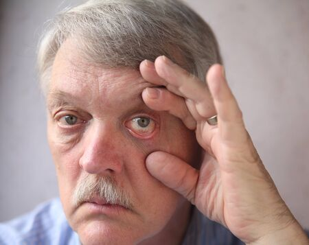 eye close up: a man checks his bloodshot eyes