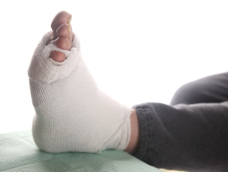 diabetic: diabetic s infected foot bandaged