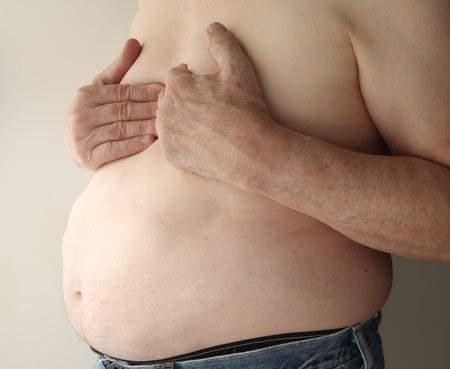 heartburn: shirtless, overweight man with heartburn or possibly more serious chest pain Stock Photo