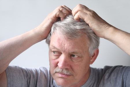 a mature man uses both hands to scratch his head