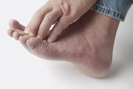 foot fungus: a man scratches his irritated toes