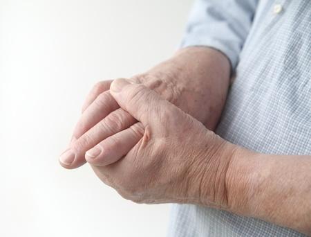 artritis: un hombre con dolor en las articulaciones de las manos Foto de archivo