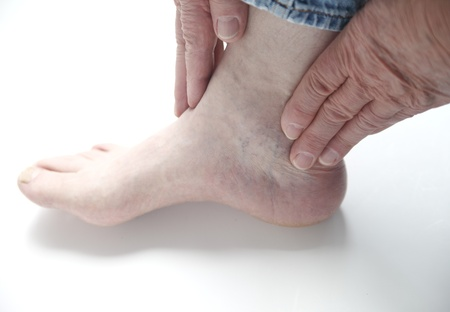 a man checks the pain in his ankle photo