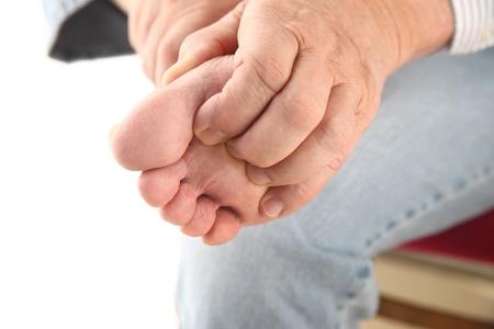 Un homme avec des rayures pied d'athlète s Banque d'images - 14005504