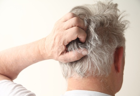 an older man has an irritated scalp