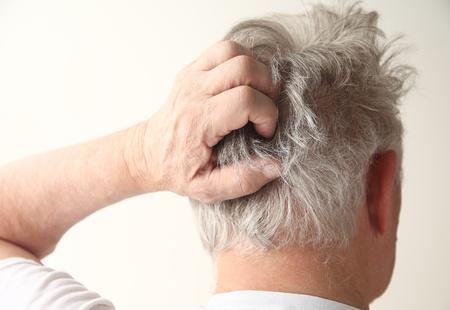 an older man has an irritated scalp