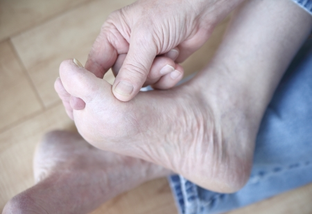 a man scratches the fungal infection between his toes Stock Photo - 17305720