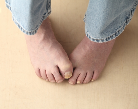 foot fungus: a man is embarrassed at his foot problems