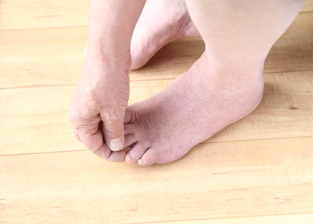 toenail fungus: diabetic man examines his feet for fungal infections