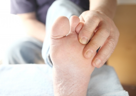 man checks the skin condition on his foot photo