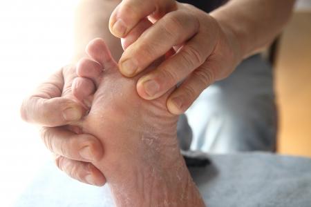 diabetes: un hombre con la piel seca en el pie y entre los dedos de los pies