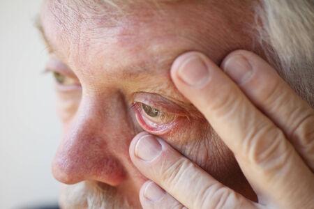 Older man has fatigue and eyestrain
