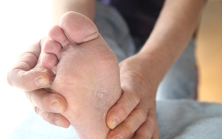 A man checks the dry, peeling skin of his athletes foot fungus between his toes.