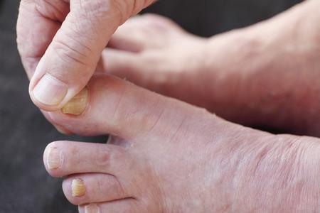 A man checks his athletes foot dry skin.