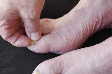 toenail fungus: closeup of man with foot conditions Stock Photo