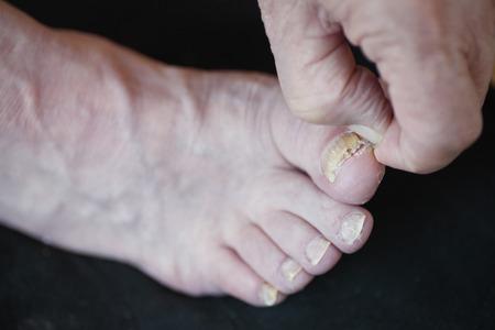 toenail fungus: A man peels dry skin from around his toenail fungus.