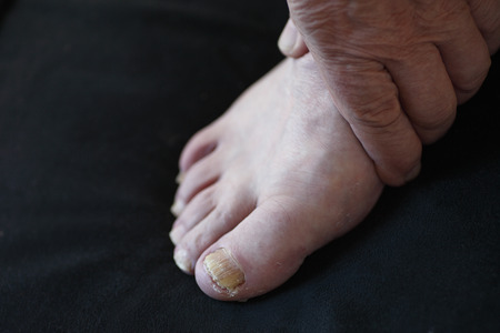 toenail: Man with a hand on his foot with toenail fungus