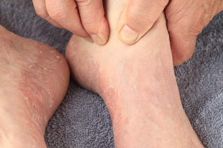 foot fungus: A man checks the reddened, dry skin of athletes foot on both feet. Stock Photo