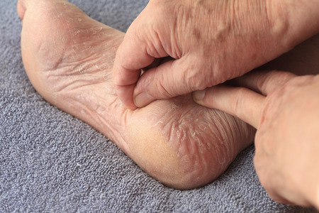 dry skin: A man peeling his athletes foot dry skin