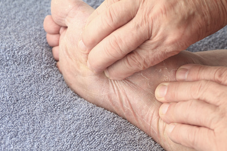 A senior man checks the dry, flaking skin of athletes foot on his sole.