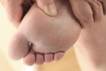 podiatry: A man holds his foot in both hands, showing the sole. Stock Photo